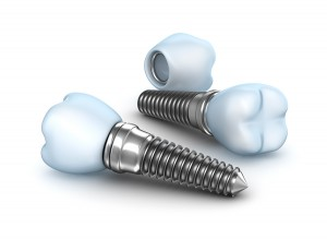 Dental Implants produced with Swiss CNC Machining